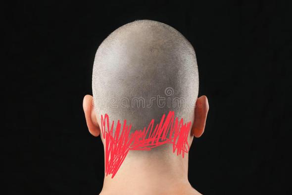 Haare Wachsen Asymmetrisch Am Nacken Gesundheit Medizin Wachstum