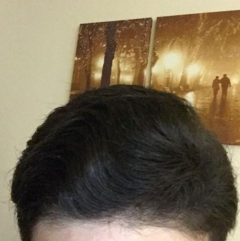 Mein Haare fallen nach vorne und sind eher einzeln als zusammen  - (Haare, Beauty)
