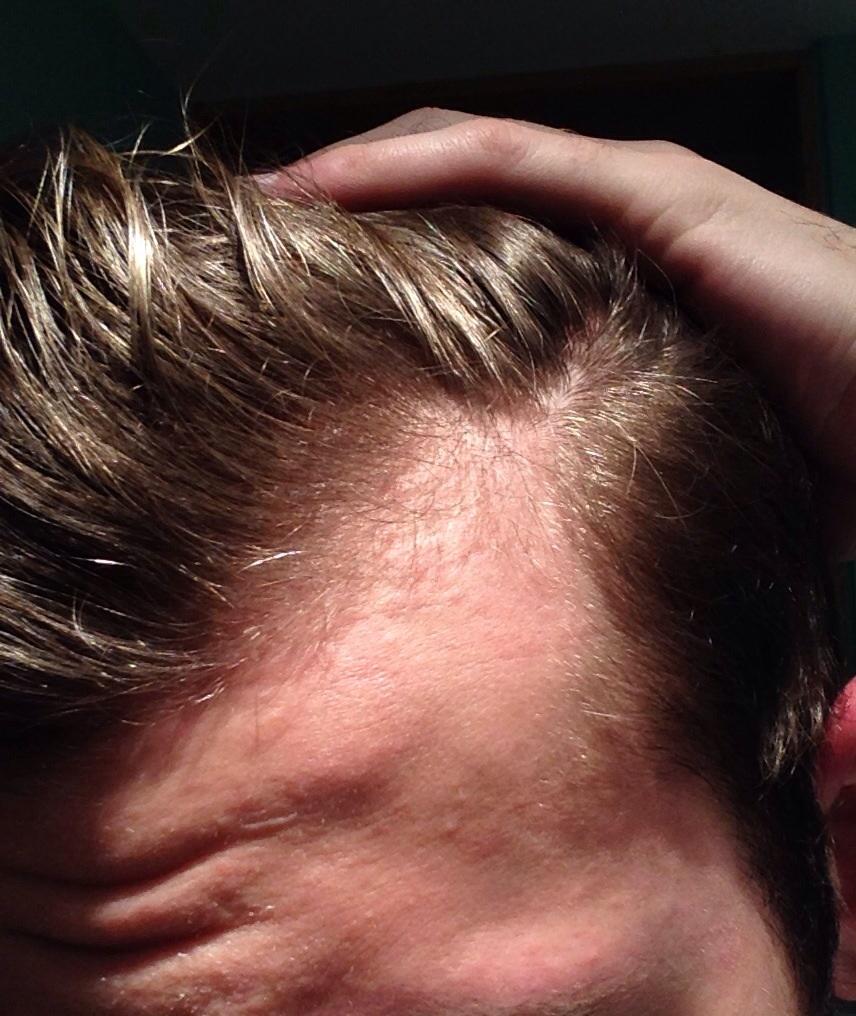 Haartransplantation Geheimratsecken Kosten? (Medizin, Arzt