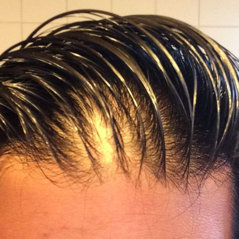 Vorne werden die haare immer dünner - (Haare)