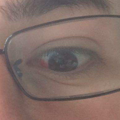 Mein auge - (Arzt, Augen)