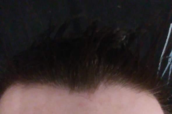 Hab ich lichtes Haar?