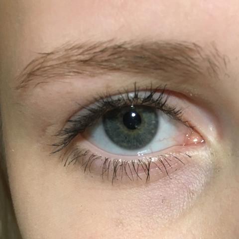 Mein Auge  - (Augen, Lid, schlupflider)