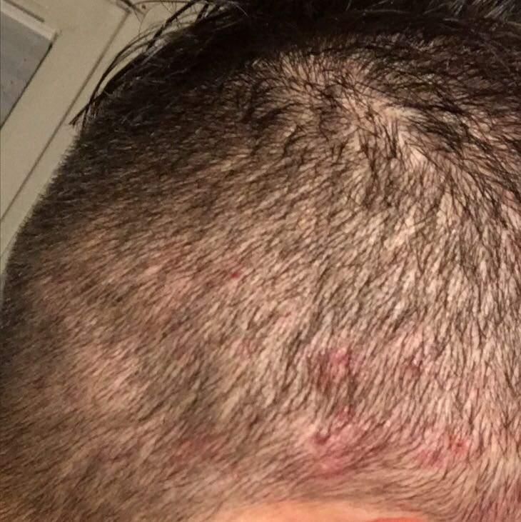 Weh bewege haare kopfhaut tut wenn ich die Haarausfall