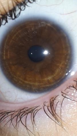 Iris um dunkler rand Irisdiagnose