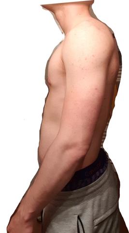 Habe ich ein Hohlkreuz (Schmerzen unterer Rücken