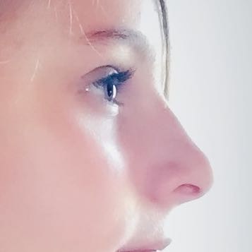 Meine Nase  - (Nase, groß)