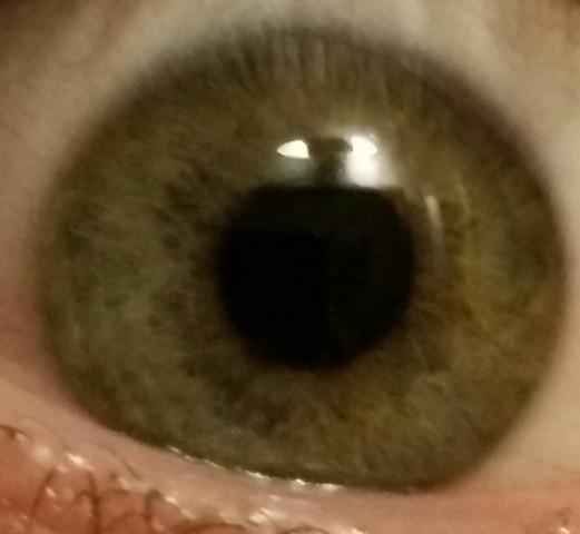 Mein Auge - (Augenfarbe, Seltene Augenfarbe)