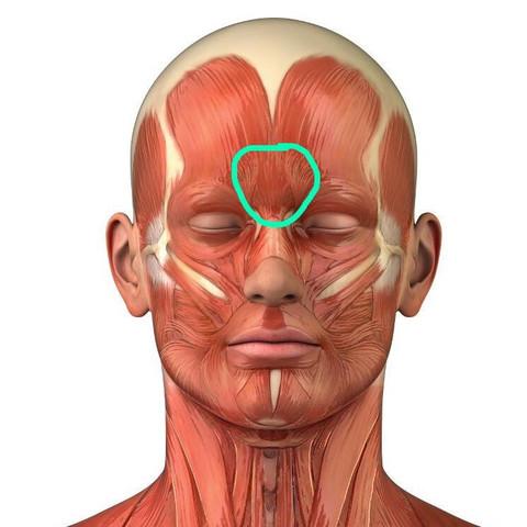 In dem grünen eingekreisten Bereich - (Kopfschmerzen, Erkältung, Stirnnebenhöhlenentzündung)