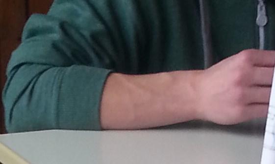 Habe ich einen zu muskulösen Ober-Unterarm? (Körper, Muskeln)