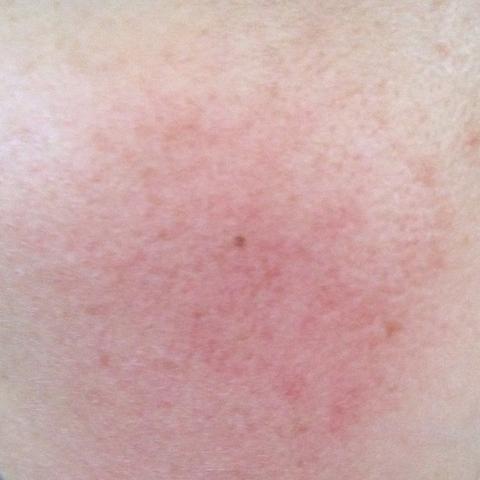 Haut Probleme Rote Flecken Unrein - (Haut, Erythrose)