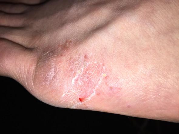 Oben am Fuß - (fußpilz, Fußkrankheit)