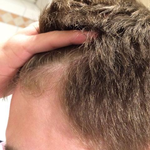 Lange haare mit geheimratsecken