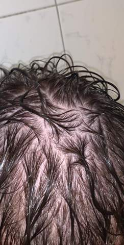 Habe ich Haarausfall mit 18?