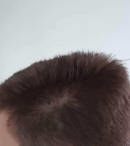 - (Haare, Frisur, Haarausfall stoppen)