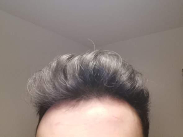 Habe ich Haarusfall?