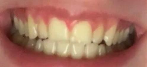 Habe ich mit 16 zu gelbe zähne? (Zahnpflege)