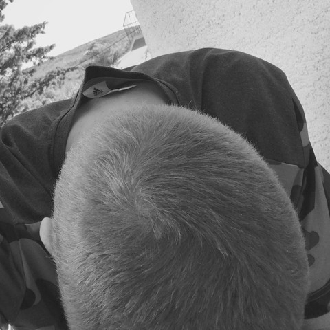 Vom hinten  - (Haare, Haarausfall)