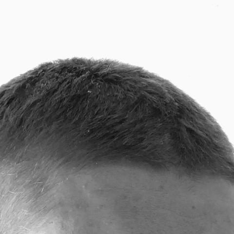 Von der Seite  - (Haare, Haarausfall)