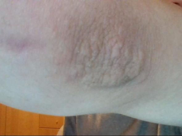 Mikrobnaja das Ekzem auf den Beinen die Behandlung die Salbe des Bildes