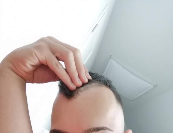Frisur geheimratsecken