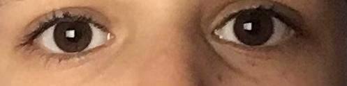 Habe ich viele Augenringe?