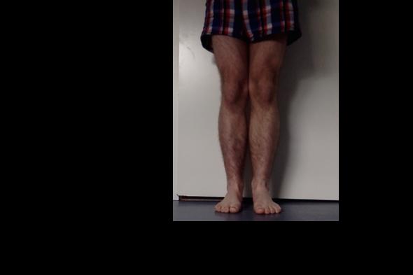Meine Beine - (Gesundheit, Körper)