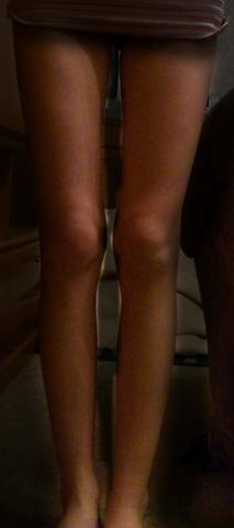 Beine zu dünn