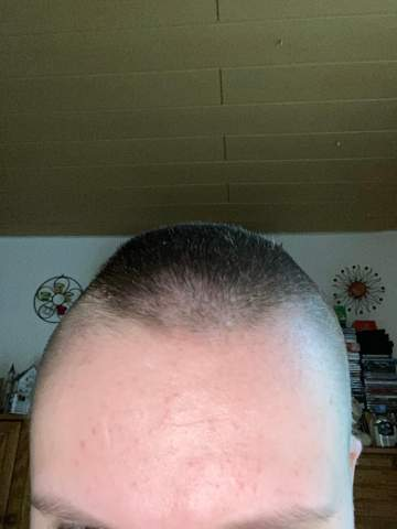 Have my head shaved to 6mm now?