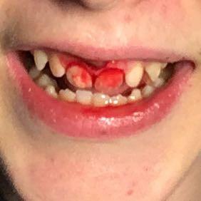 Lippenbändchen Verletzt