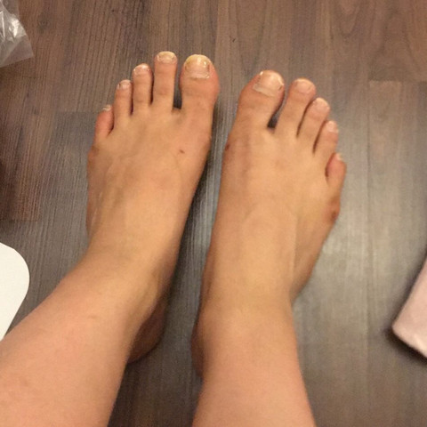 habe so breite Füße :((? (Frauen, pediküre)