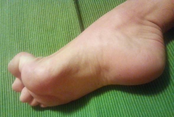 Bild 2 - (Schmerzen, Füße, Zeh)
