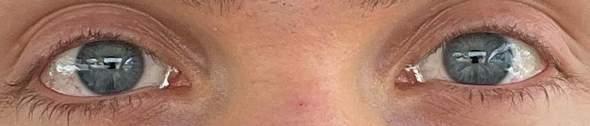 Habt Ihr einen Tipp für dieses Augen / Haut Problem?