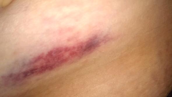 Mein Becken oder Leiste - (Sport, Schmerzen, Verletzung)