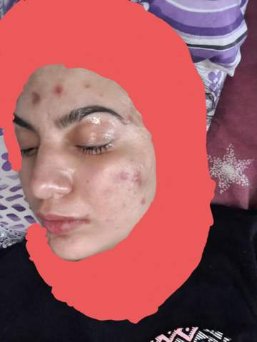 Do you have tips against eczema What can I do about it?