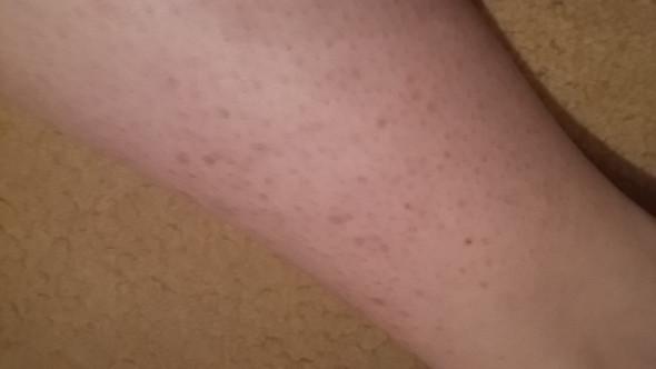 Welche Creme von der Pigmentation auf den Händen