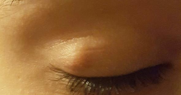 Auge - (Gerstenkorn, Hagelkorn)