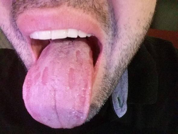 Symptome_Weiße Zunge - (HIV, Lymphknotenschwellung, Weißer Zungenbelag)
