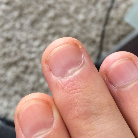 Blauer Rand vor dem nagelbett normal ? - (Nägel, Finger)