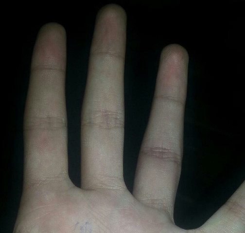 Mein Finger - (Arzt, Finger)