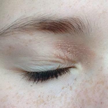 Auf dem Augenlied sehr schuppig  - (Neurodermitis, rite)