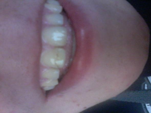 zähne bleichen lassen, ein strich im zahn:/ - (Gesundheit, Beauty, braun)