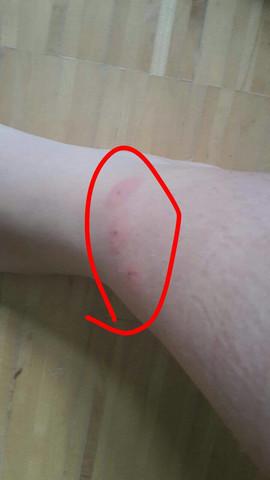 Das sind die Stiche - (Mücken, Stich, schlimm)