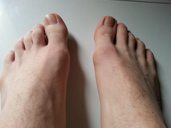 Gicht Fuß