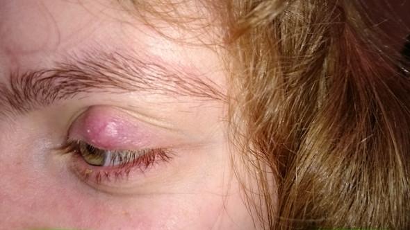 Auge - (Gesundheit, Körper)
