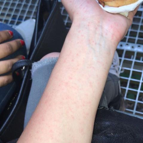 Hallo seit 3 Tagen hab ich auf einmal rote kleine Punkte bekommen sehen eher aus wie kleine Pickel an der Hand juckt es aber am Arm nicht?