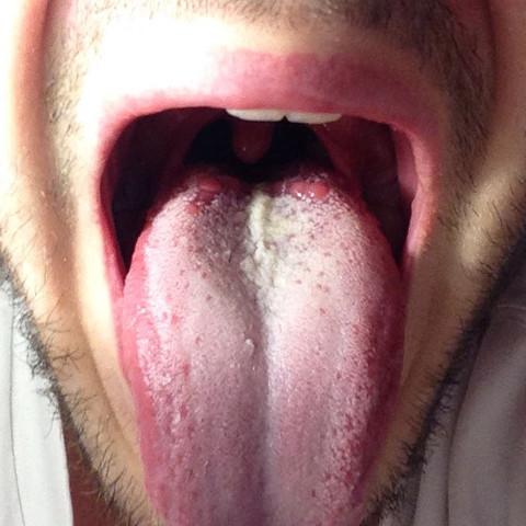 Zungenbelag brauner Belegte Zunge