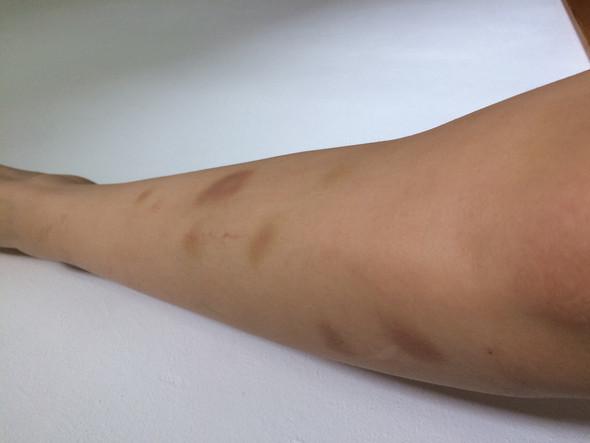 Beinen an blaue flecke den Darum bekommen