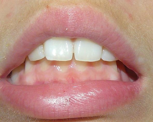 Überbiss und eine kleine Zahnlücke :I - (Krankenkasse, Zahnspange)