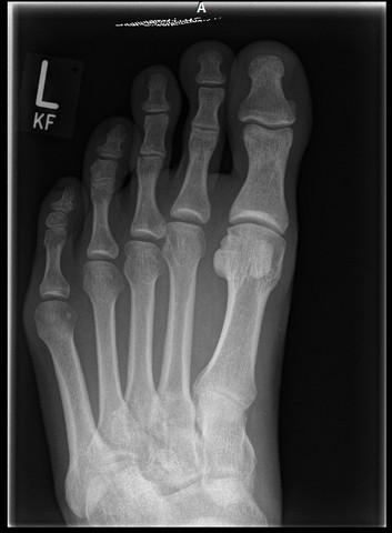 Röntgen von oben - (Sport, Medizin, Arthrose)